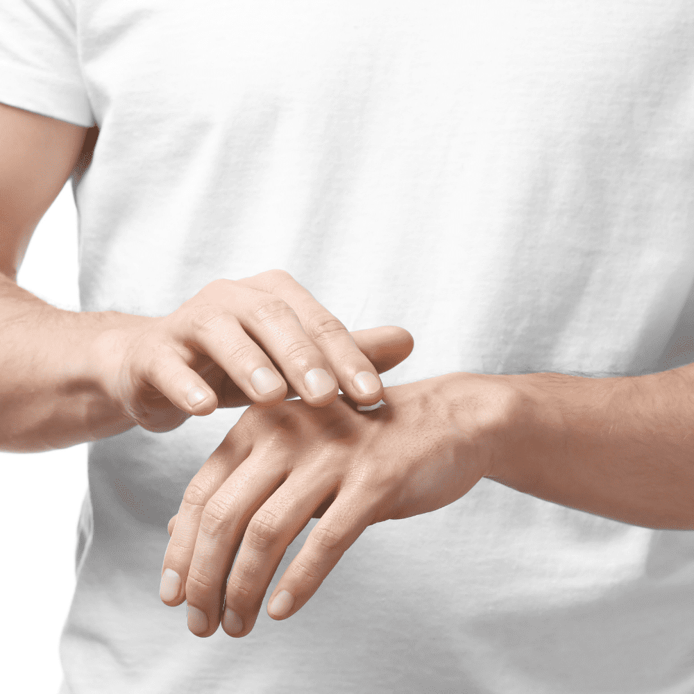Mani screpolate: come combatterle